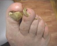El modo eficaz de sanar el hongo las uñas